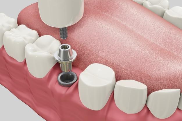Procedimento de tratamento de implantes dentários. conceito medicamente exato das dentaduras da ilustração 3d.