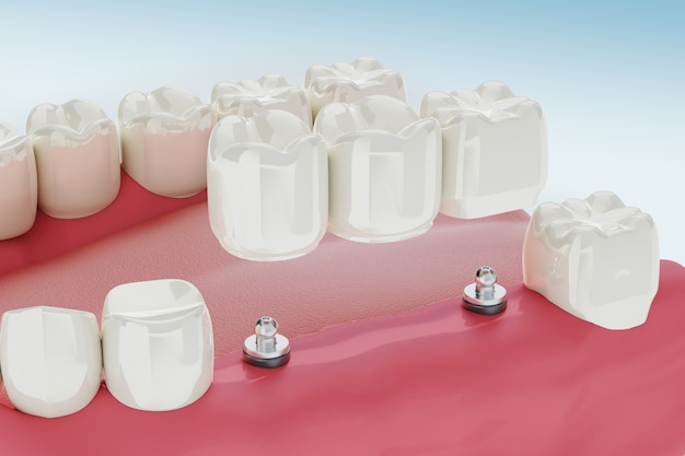 Procedimento de tratamento de implantes dentários. ilustração 3d clinicamente precisa.