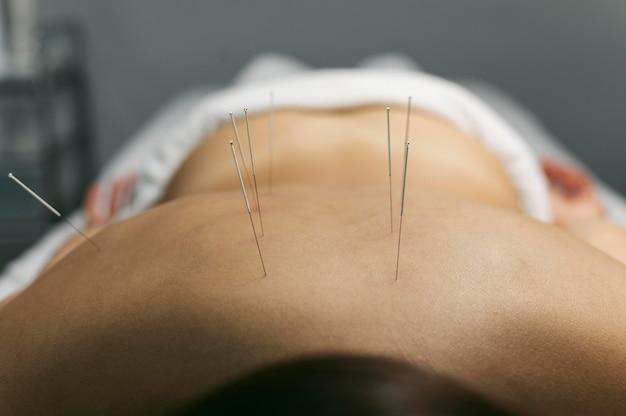 Processo de acupuntura para cliente