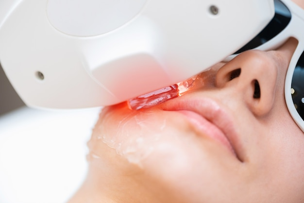 Processo de rejuvenescimento do elos, remoção da pigmentação e closeup da rede vascular.