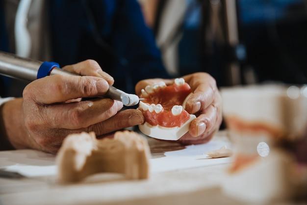 Processos de técnico dentário fundidos a partir da mandíbula do paciente