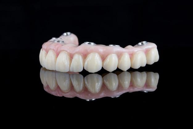 Prótese dentária de qualidade feita de feixe de titânio e cerâmica para fixação na mandíbula superior