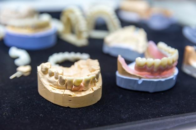 Prótese dentária, prótese dentária, implantes dentários