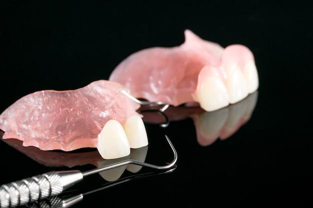 Prótese temporária e ferramentas dentárias.