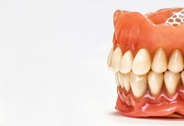 Próteses dentárias isoladas