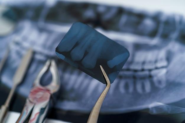 Próteses e instrumentos dentários. radiografia panorâmica da mandíbula. tratamento odontológico individual. instrumentos de estomatologia de metal.