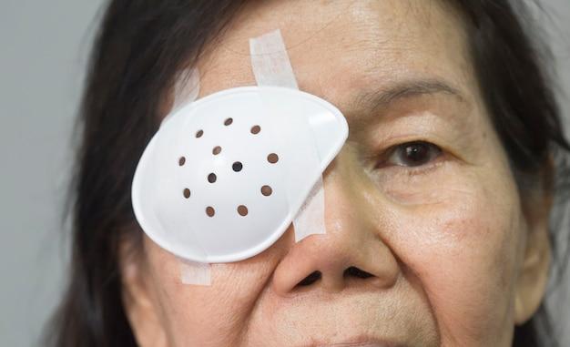 Protetor ocular cobrindo após cirurgia de catarata.