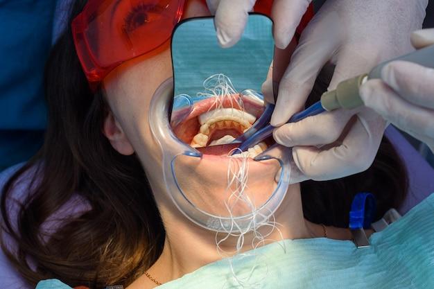 Prprocesso de remoção de aparelho dentário de uma menina caucasiana em uma clínica odontológica com uma dentista, colocando o retentor fixo