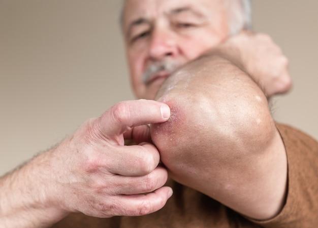 Psoríase no cotovelo. closeup dermatite na pele dermatite alérgica erupção cutânea eczema do paciente dermatite atópica sintoma textura de detalhe da pele, dermatologia de conceito de fungo, tratamento fúngico e fúngico