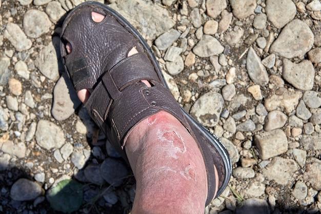 Queimadura na pele na área do tornozelo como resultado da negligência das medidas de segurança ao sol
