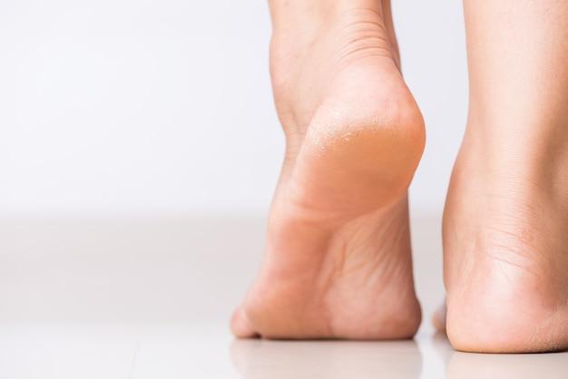Rachaduras em saltos com a pele ruim coberta. conceito de saúde e médico.