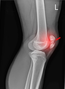 Radiografia da articulação do joelho