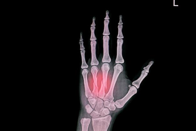 Radiografia da mão mostrando fratura fechada do terceiro e quarto ossos metacarpais.