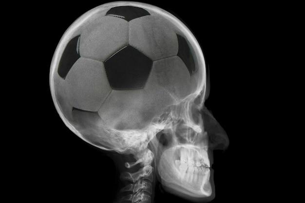 Radiografia de crânio com bola de futebol dentro