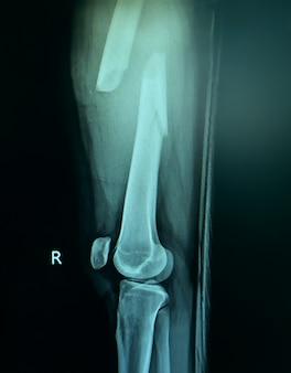 Radiografia de filme de fratura na coxa direita.