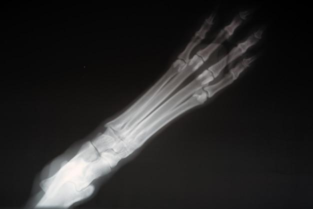 Radiografia de uma pata de cachorro. imagem real do raio de x de uma pata ferida do cão.