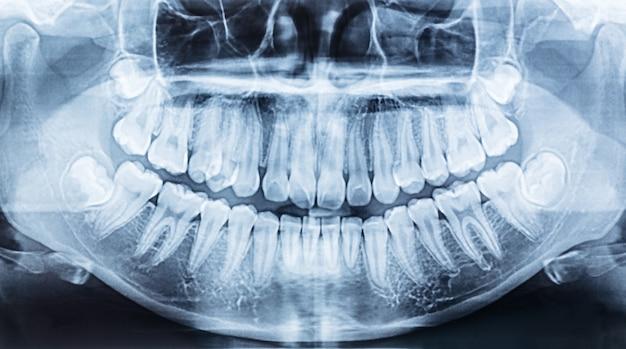 Radiografia dentária panorâmica de uma boca esquerda e direita.