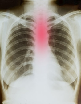 Radiografia do corpo símbolo de refluxo ácido