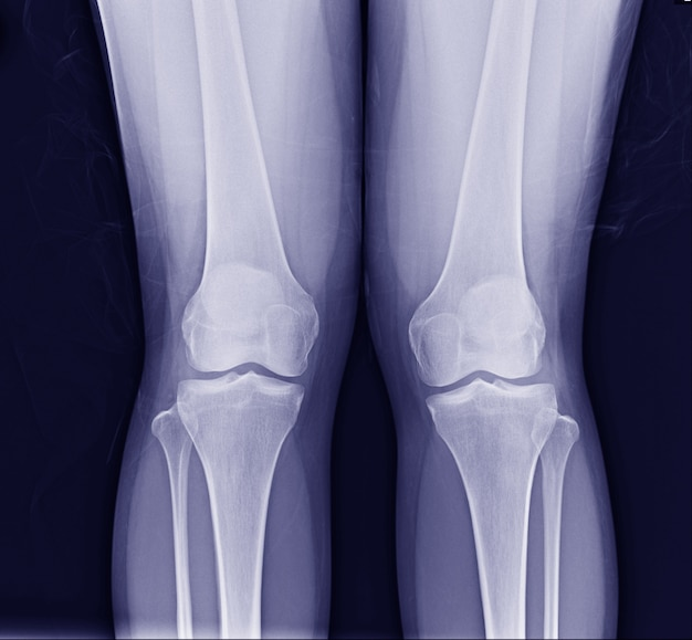 Radiografia do joelho