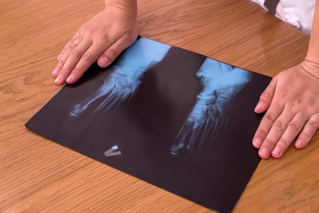 Radiografia do pé do paciente na mesa com as mãos do médico