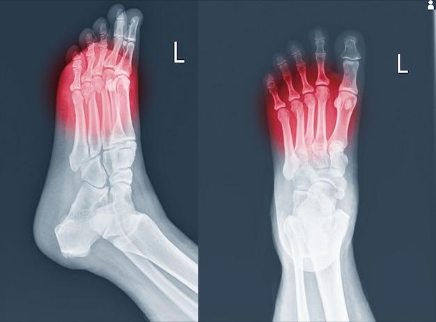 Radiografia do pé e tornozelo mostrando fraturas do metatarso.