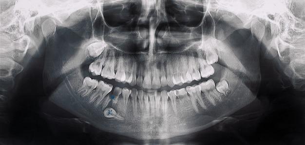 Radiografia odontológica de imagem panorâmica em preto e branco de adulto