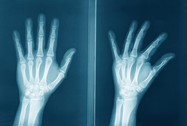 Radiografia original da mão humana