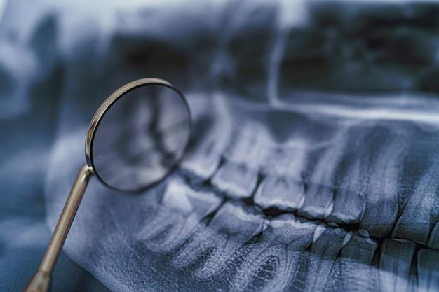 Radiografia panorâmica da mandíbula com espelho dental. conceito de tratamento odontológico. fechar-se.