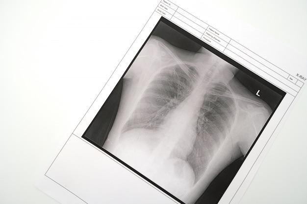 Radiografia pulmonar
