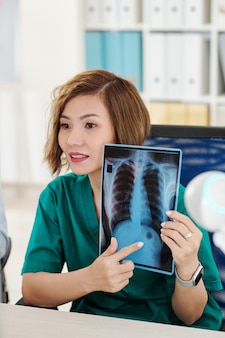 Radiologista fazendo videochamada e apontando mancha escura na radiografia de tórax do paciente