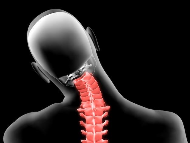 Raio-x 3d do pescoço doloroso