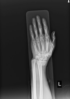 Raio x articulação do punho esquerdo fratura com raio distal da extremidade distal do deslocamento.