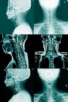 Raio-x da coluna c e ressonância magnética de um paciente com fraqueza crônica nas extremidades superiores mostrando hérnia