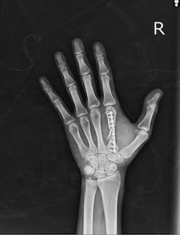 Raio x da mão ap, oblique: pós-fratura fixa segundo osso metacarpol com placa e parafusos.