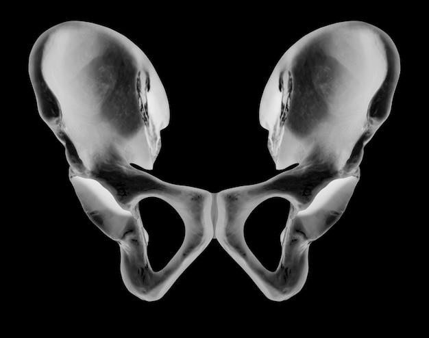 Raio x da vista anterior do osso do quadril humano
