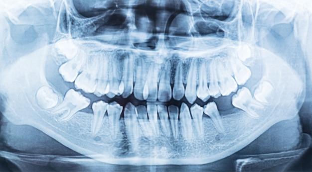 Raio x dental panorâmico de uma boca esquerda e lado direito.