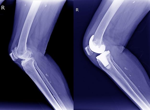 Raio x direita osteoartrite do joelho (oa) e pós-operatório artroplastia total do joelho (atj) vi