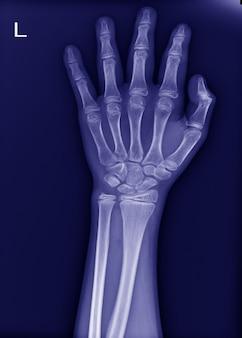 Raio-x do punho esquerdo sem fratura e articulação normal.