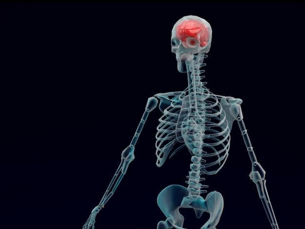 Raio x humano cérebro vermelho em fundo preto