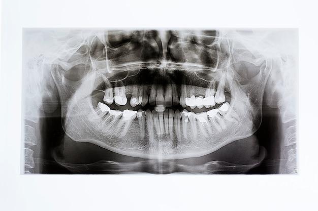 Raios-x da mandíbula e dentes