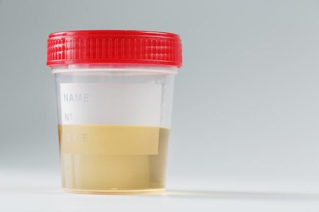 Recipiente com exames médicos de urina