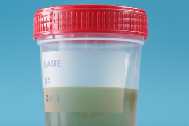 Recipiente para biomateriais com análise de urina e tampa vermelha em fundo azul