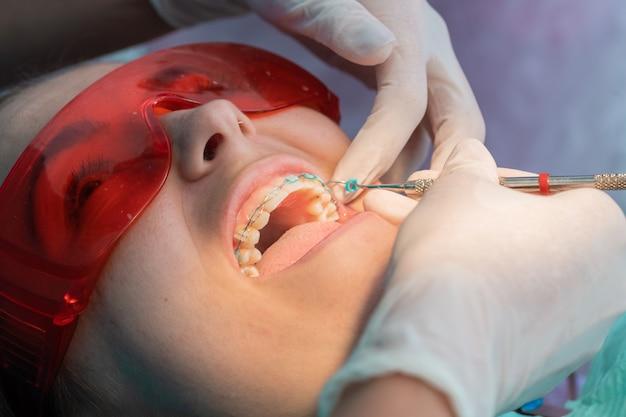 Remoção dos elásticos do aparelho dentário no processo de remoção do aparelho dentário de uma garota branca em uma clínica odontológica com uma dentista