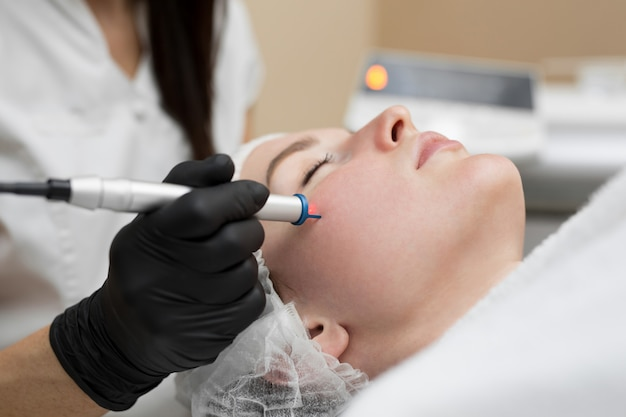 Remoção em close-up de vasos sanguíneos na face de um laser de diodo em uma clínica de estética. esteticista terapeuta faz um tratamento a laser no rosto de uma jovem mulher na clínica spa de beleza