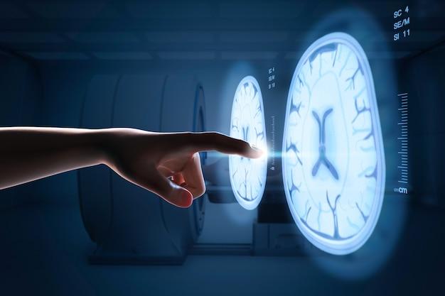 Renderização 3d apontando o dedo humano para o display gráfico de raio-x do cérebro