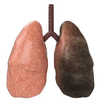 Renderização 3d de pulmão saudável e pulmão preto