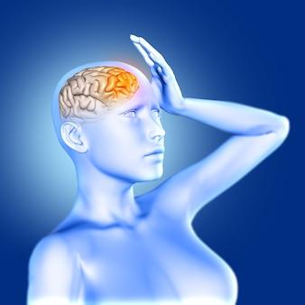 Renderização 3d de uma figura médica feminina azul com dor e cérebro em destaque