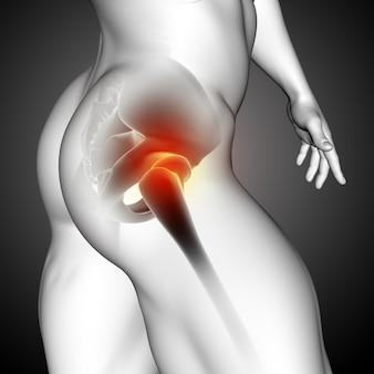 Renderização 3d de uma figura médica masculina com close-up do osso do quadril