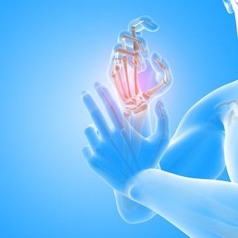 Renderização 3d de uma figura médica masculina com close-up dos ossos da mão