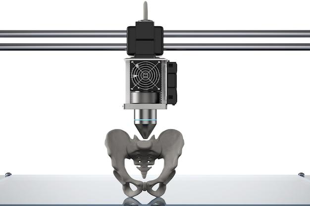 Renderização 3d impressora 3d imprimir prótese óssea do quadril